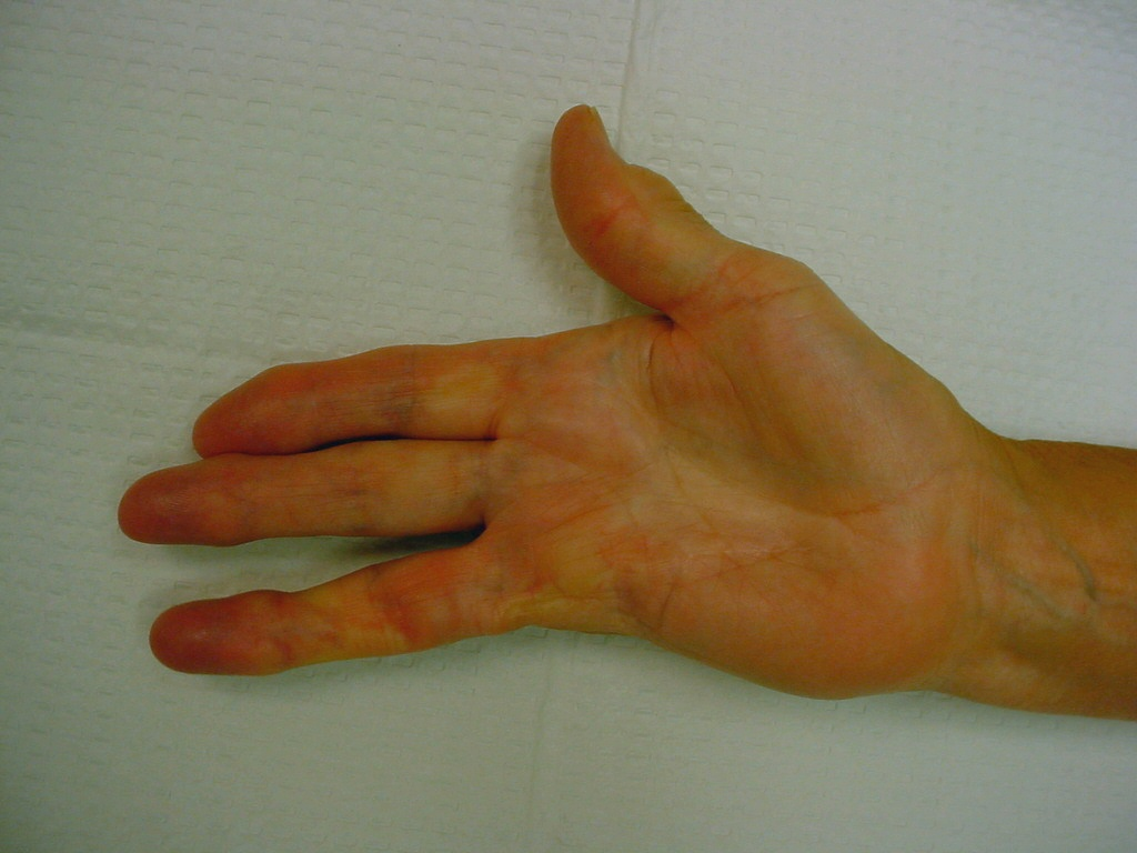 Gallery: Amputation for Dupuytren Contracture