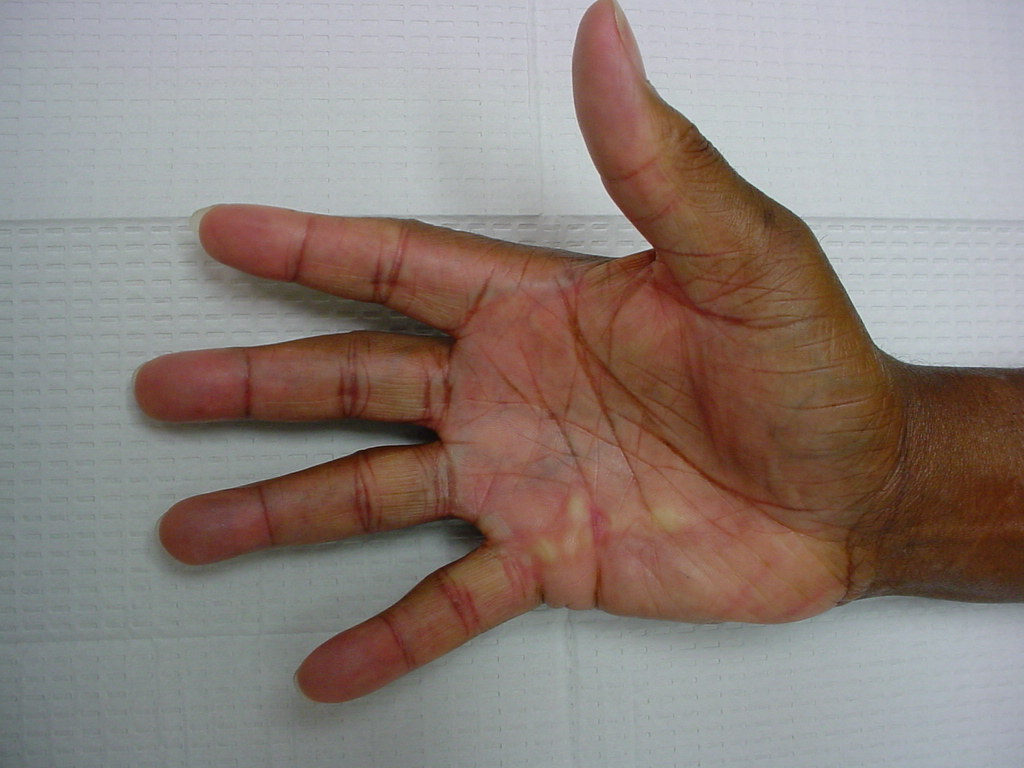 Gallery: African Americans with Dupuytren Contracture
