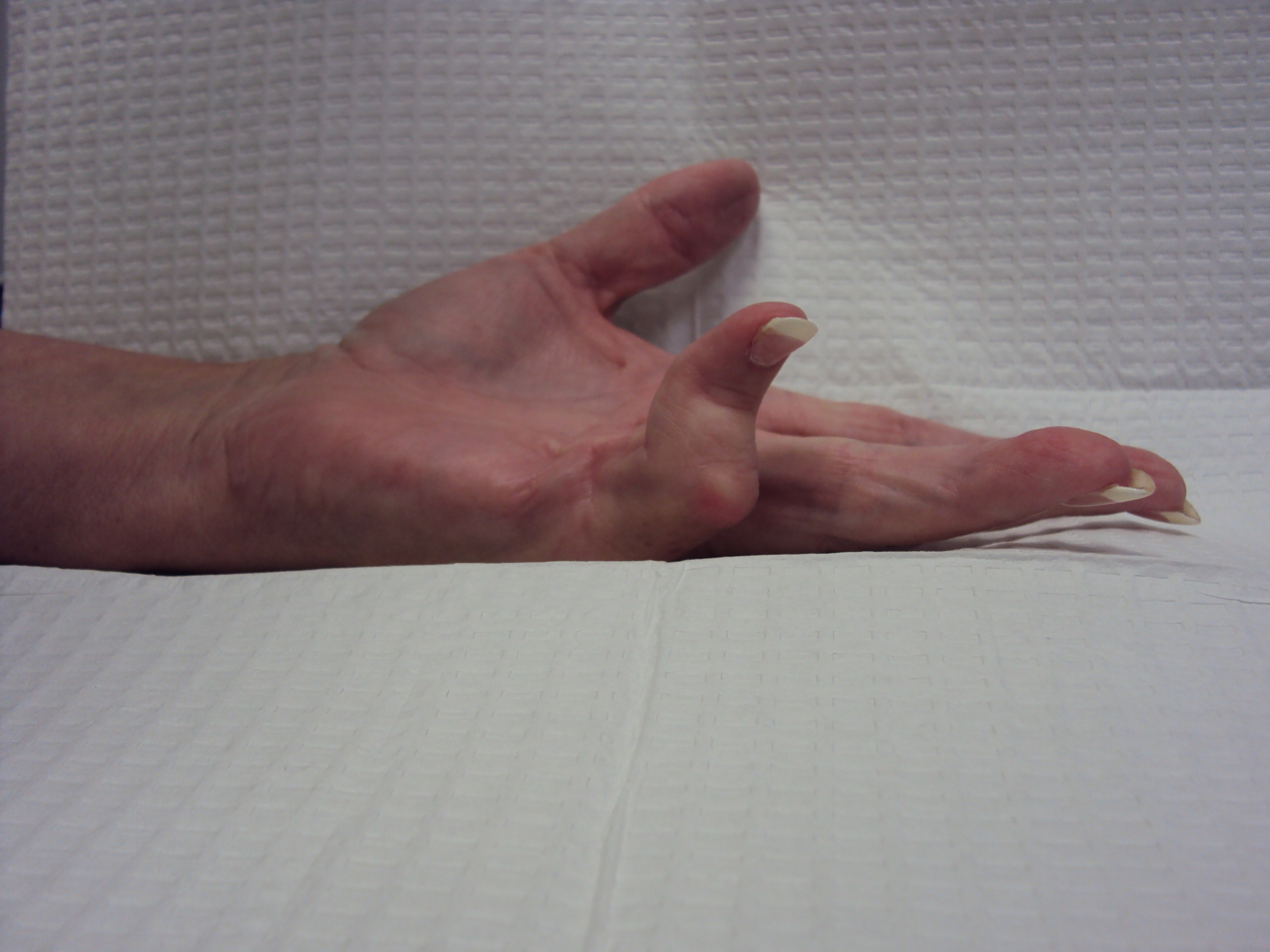 Gallery: Boutonniere related to Dupuytren contracture