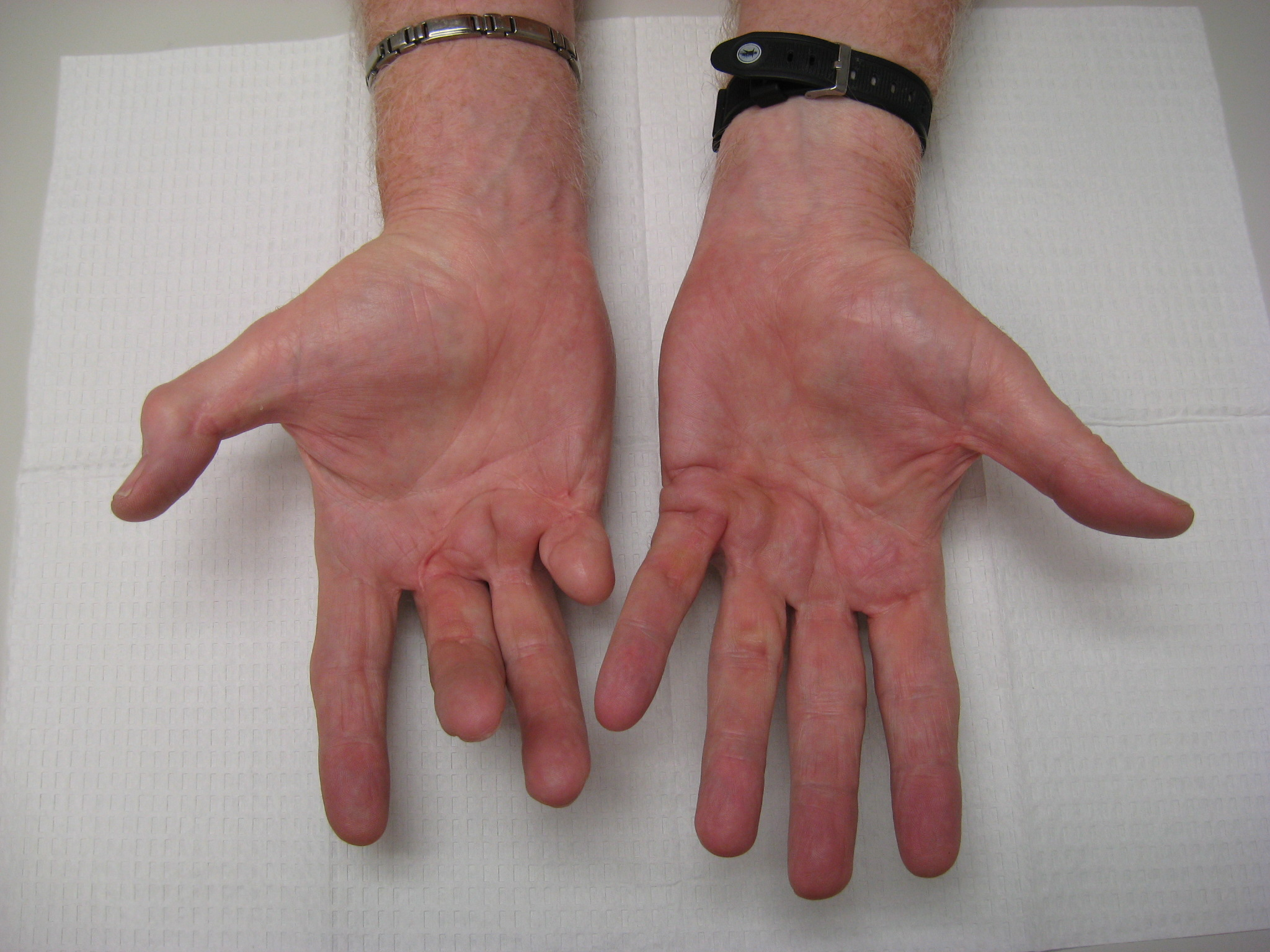 Gallery: Amputation for Dupuytren Contracture | Dupuytren