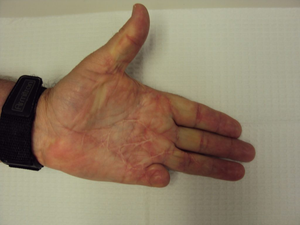 Gallery: Amputation for Dupuytren Contracture | Dupuytren ...