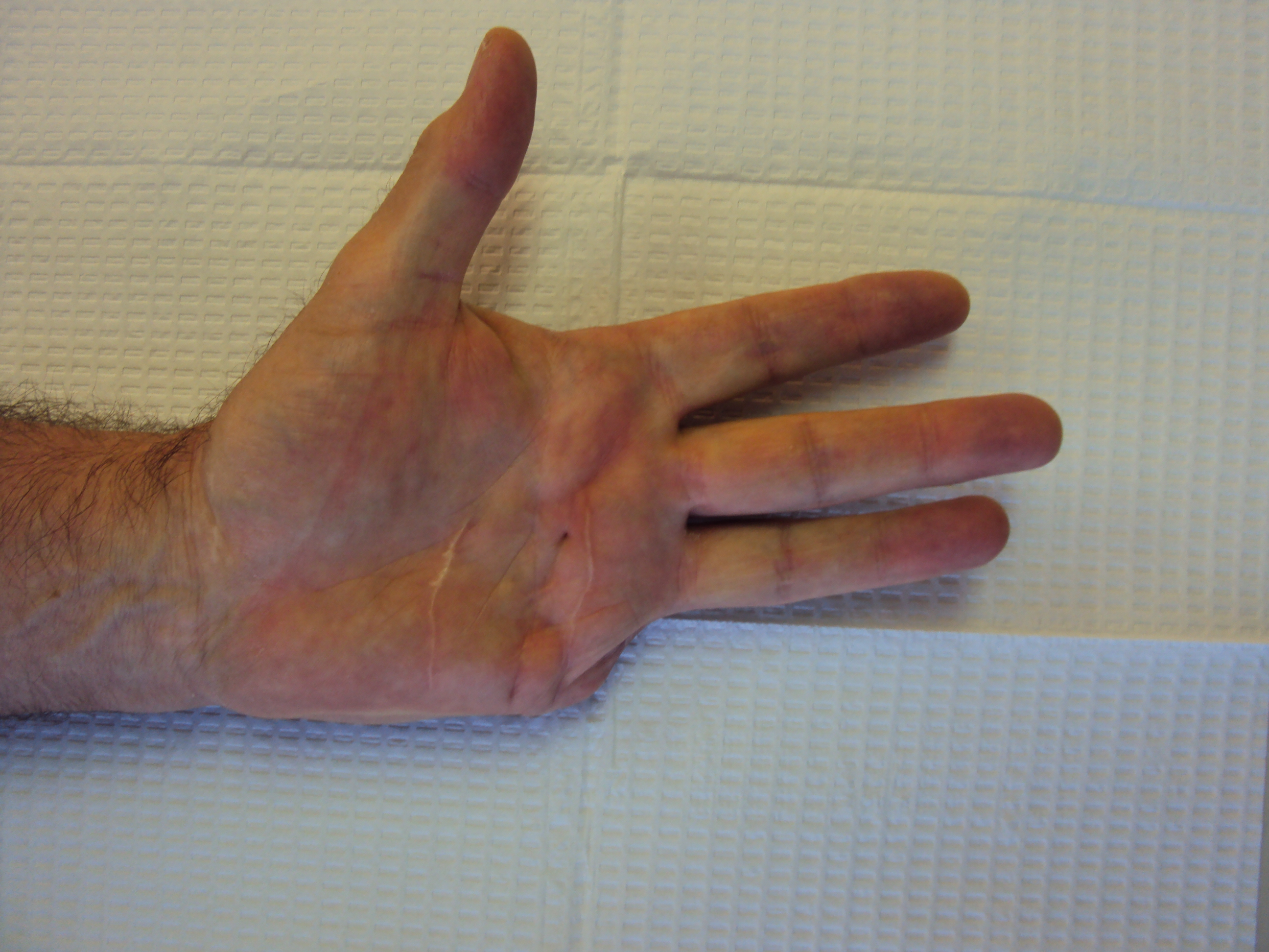 Gallery Amputation For Dupuytren Contracture