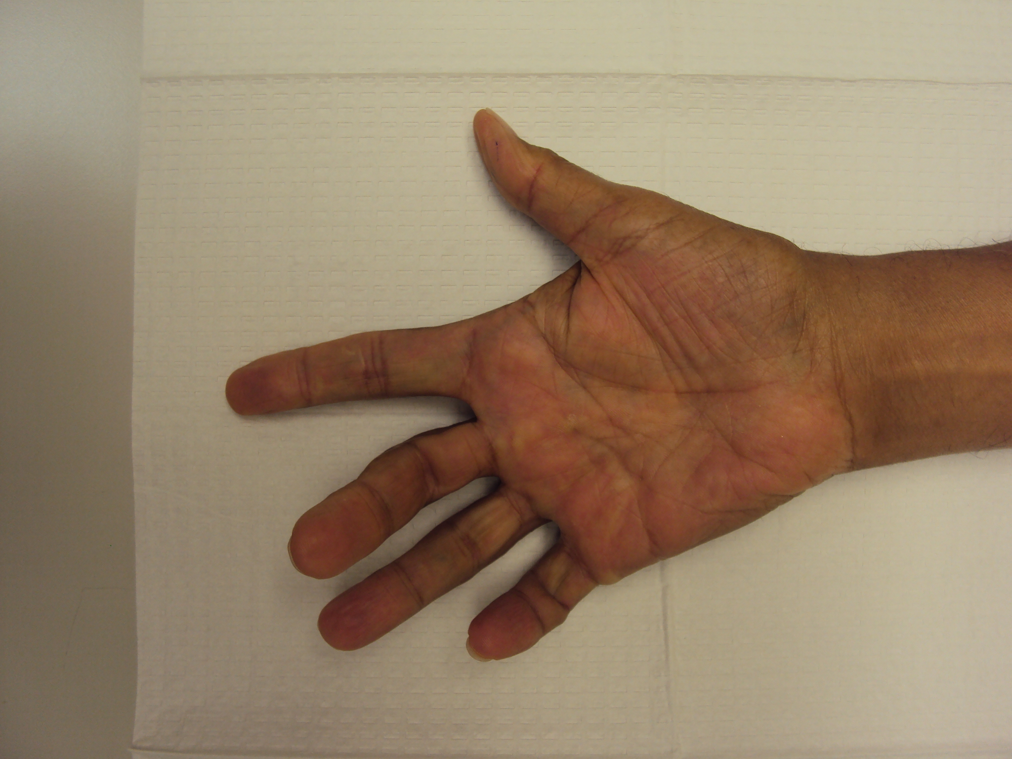 Gallery: African Americans with Dupuytren Contracture ...