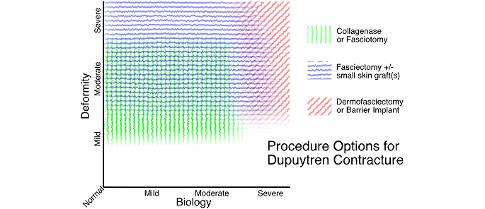 Dupuytren Contracture Procedure Choice